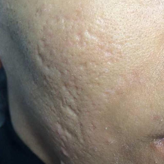 Traitemernt cicatrice acné